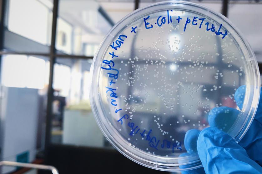 Surto da bactéria E.coli fez mais de 50 mortes